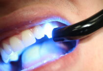 Dental Adhesives